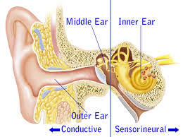 types of hearing loss image
